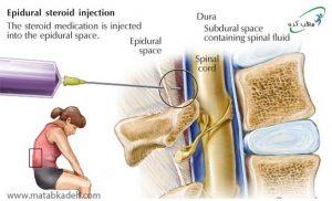 تزریق ریشه های عصبی مهره برای کاهش درد