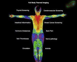 ترموگرافی