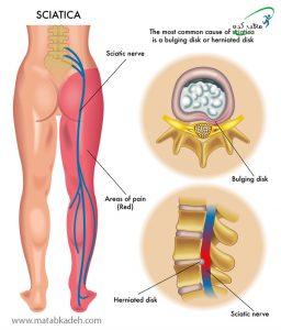 انجام طب سوزنی در افراد مبتلا به فتق دیسک و درد عصب سیاتیک