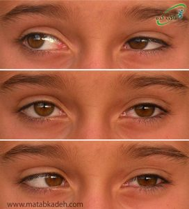 لوچی چشم