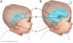 هیدروسفالی و افزایش حجم مایع مغزی - نخاعی