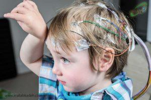 تشنج در کودکان مبتلا به فنیل کتونوری یا pku