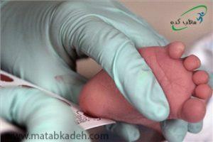 آزمایش خون برای تشخیص گالاکتوزمی در کودکان