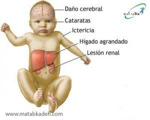 علائم گالاکتوزمی در کودکان